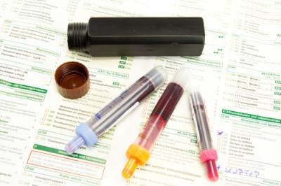 Hormone Testing | St. Petersburg | Simon Wellness Consulting